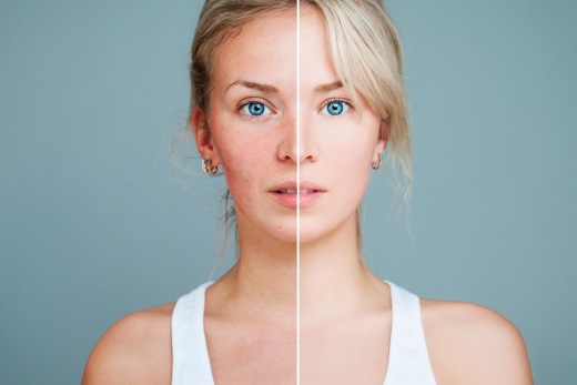 Habits that Damage Your Skin